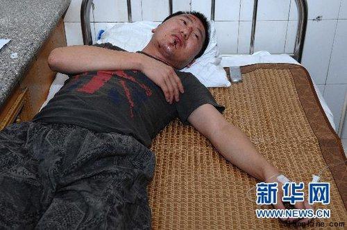 7月17日,一名受伤乘客正在医院接受治疗。新华社记者 潘昱龙 摄